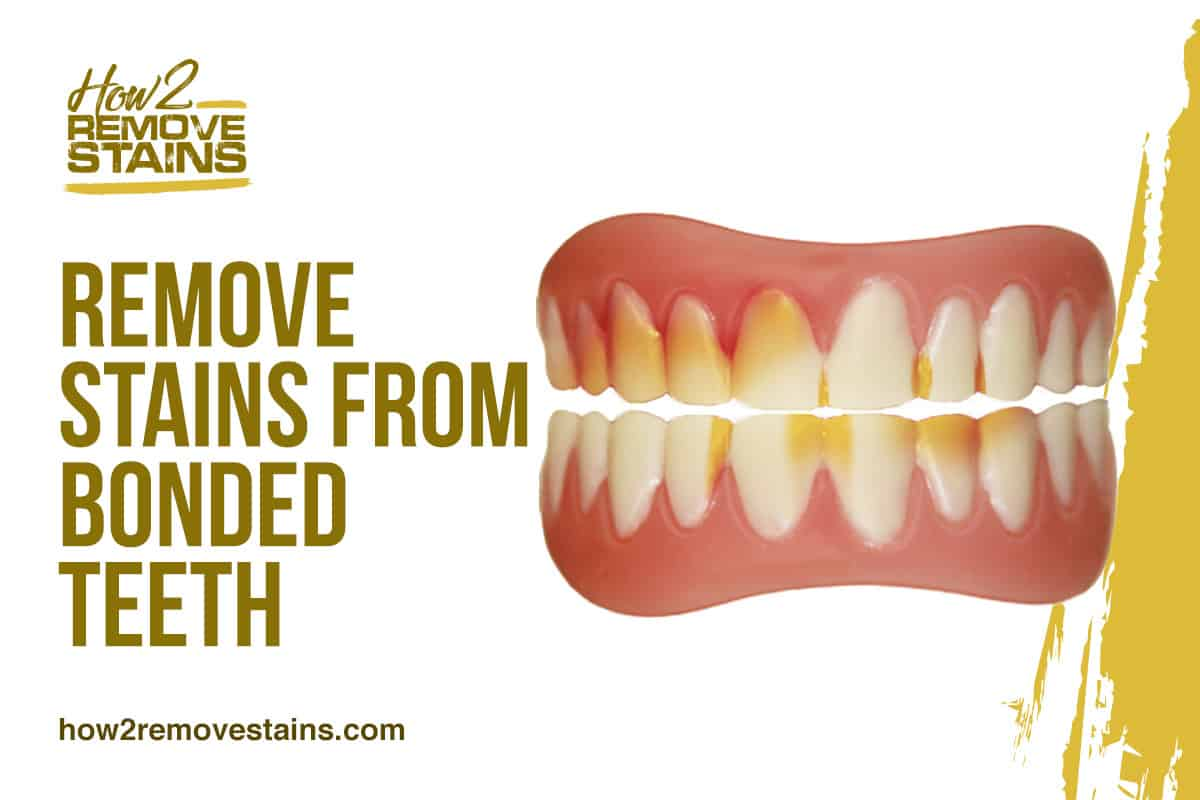 How to Remove Stains from Bonded Teeth